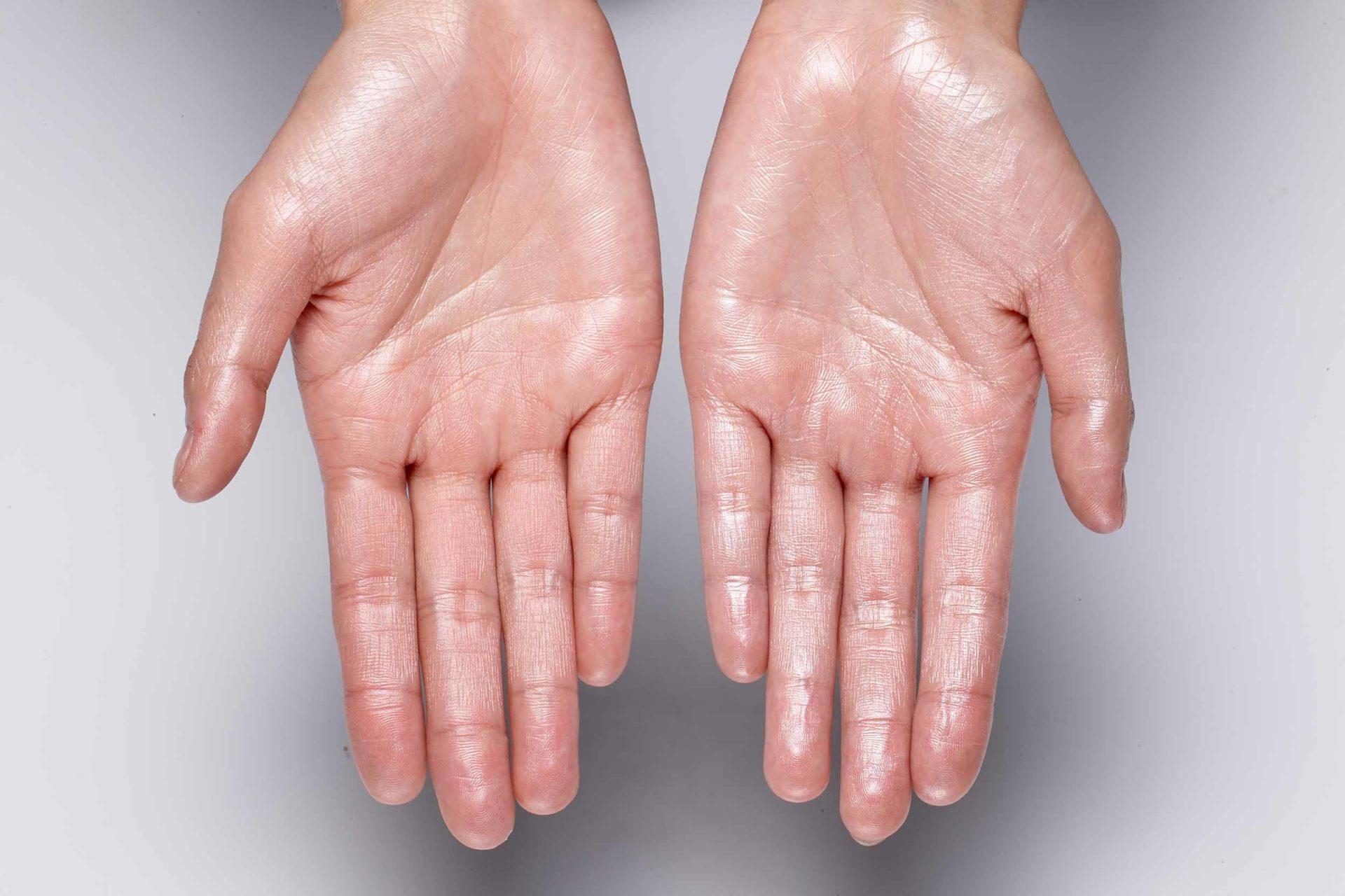 Übermäßiges Schwitzen an Händen, Füßen und Achseln